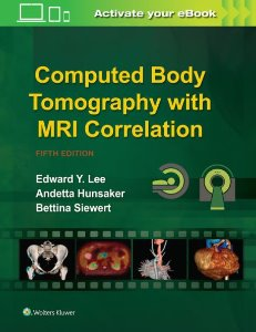 Computed Body Tomography with MRI Correlation ,5/e