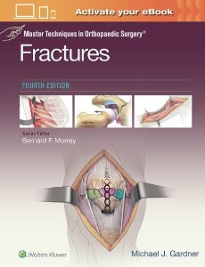 Master Techniques in Orthopaedic Surgery: Fractures ,4/e