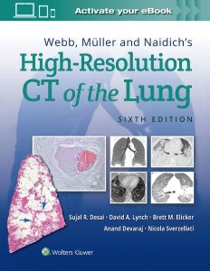 Webb, Müller and Naidich's High-Resolution CT of the Lung,6/e