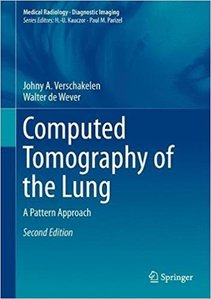Computed Tomography of the Lung:A Pattern Approach,2/e