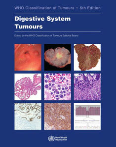 WHO Classification  Digestive System Tumours  ,5/e
