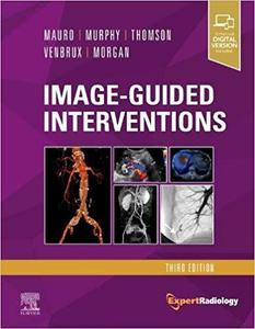 Image-Guided Intervention:Expert Radiology Series ,3/e